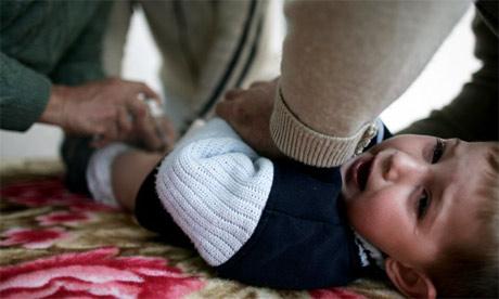 circuncision infantil