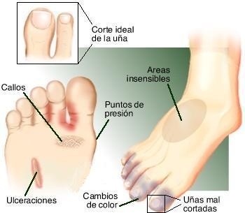 Arreglar el hongo sobre el dedo del pie