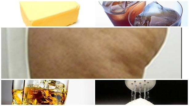 Alimentos que pueden causar celulitis