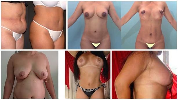 Cirugías estéticas más peligrosas en mujeres