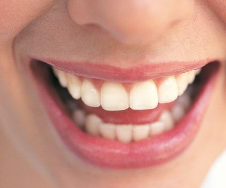La cosmética dental también debe hacer parte de tu vida